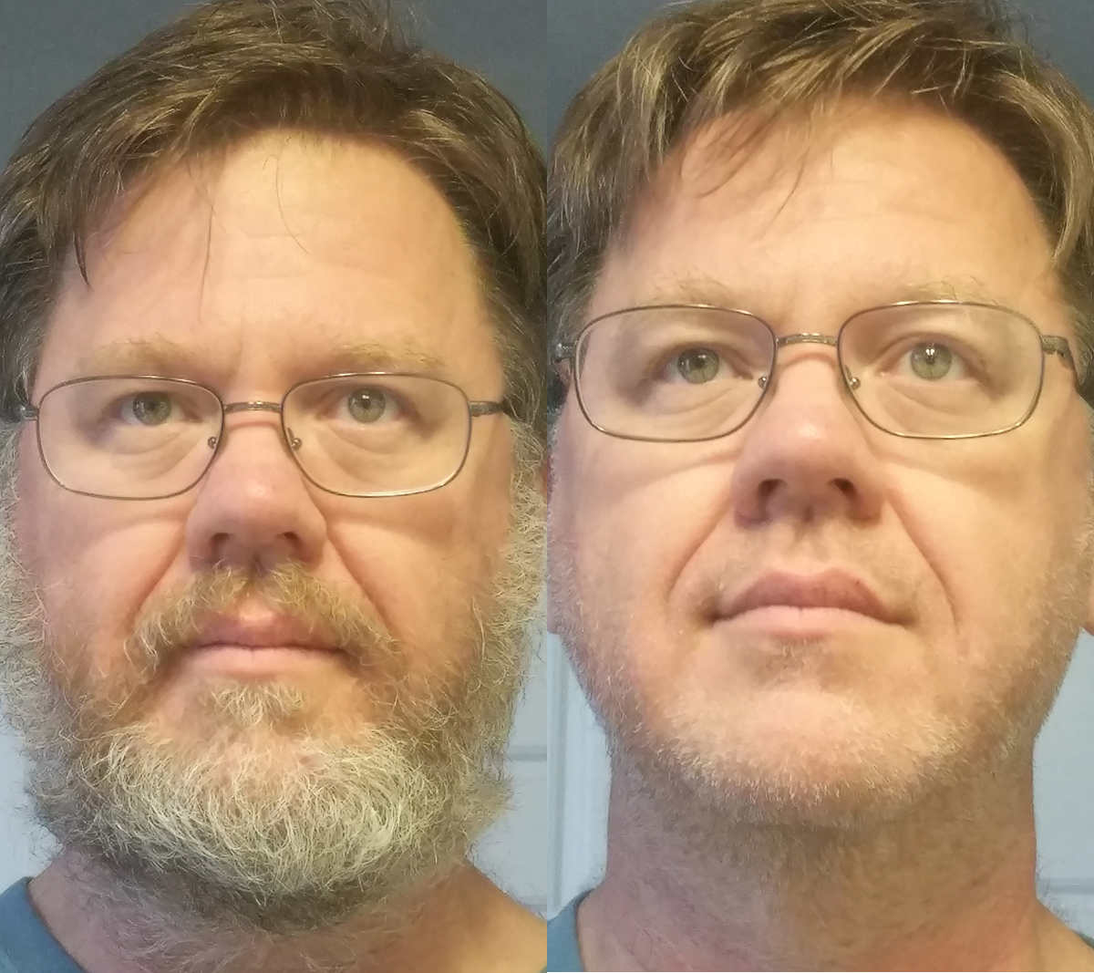 before and after shaving beard